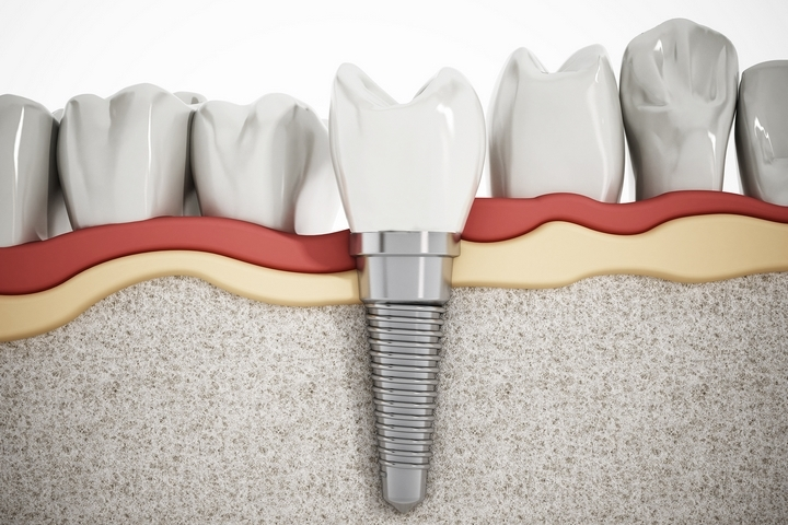 4 Methods to Take Care of Your Dental Implants