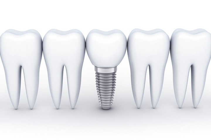 The Top 5 Advantages of Having Dental Implants