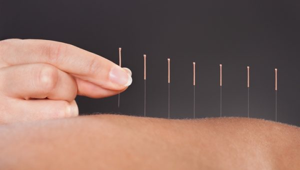 10 Surprising Acupuncture Benefits for Your Personal Health